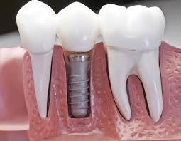 I. Dental Implants (1)