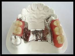 Cast Partial Dentures Partial Denture Costs